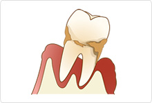 歯周病は予防することができます